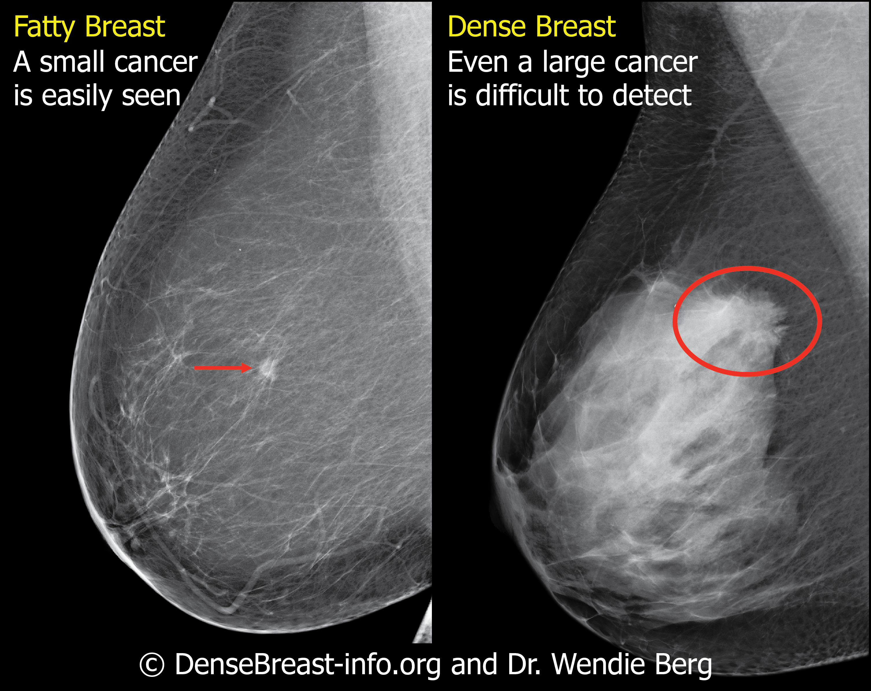 Why Your Breast Density Matters