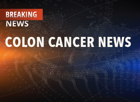 Xeloda An Effective Treatment Option For Stage Iii Colon Cancer
