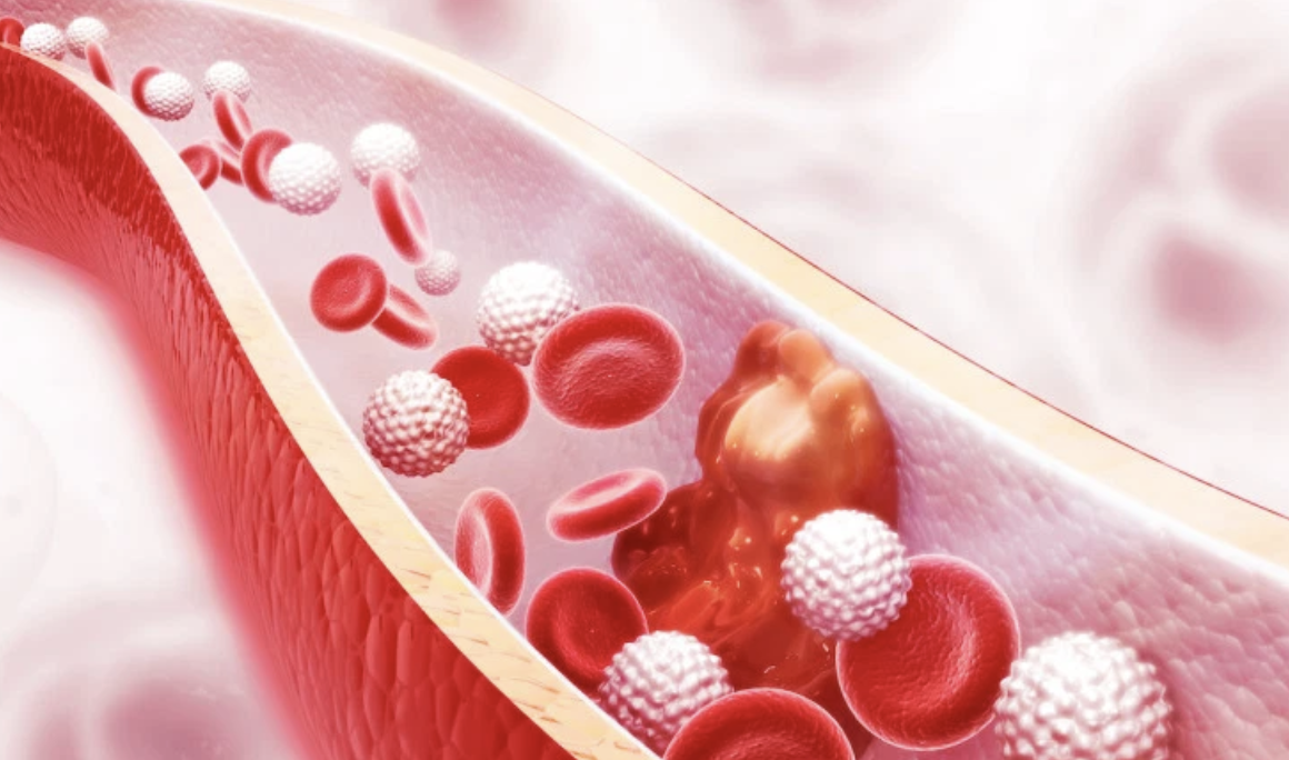 Heart Disease and The Cholesterol Connection