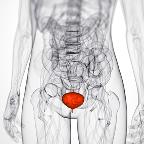 What Every Woman Should Know About Bladder Cancer