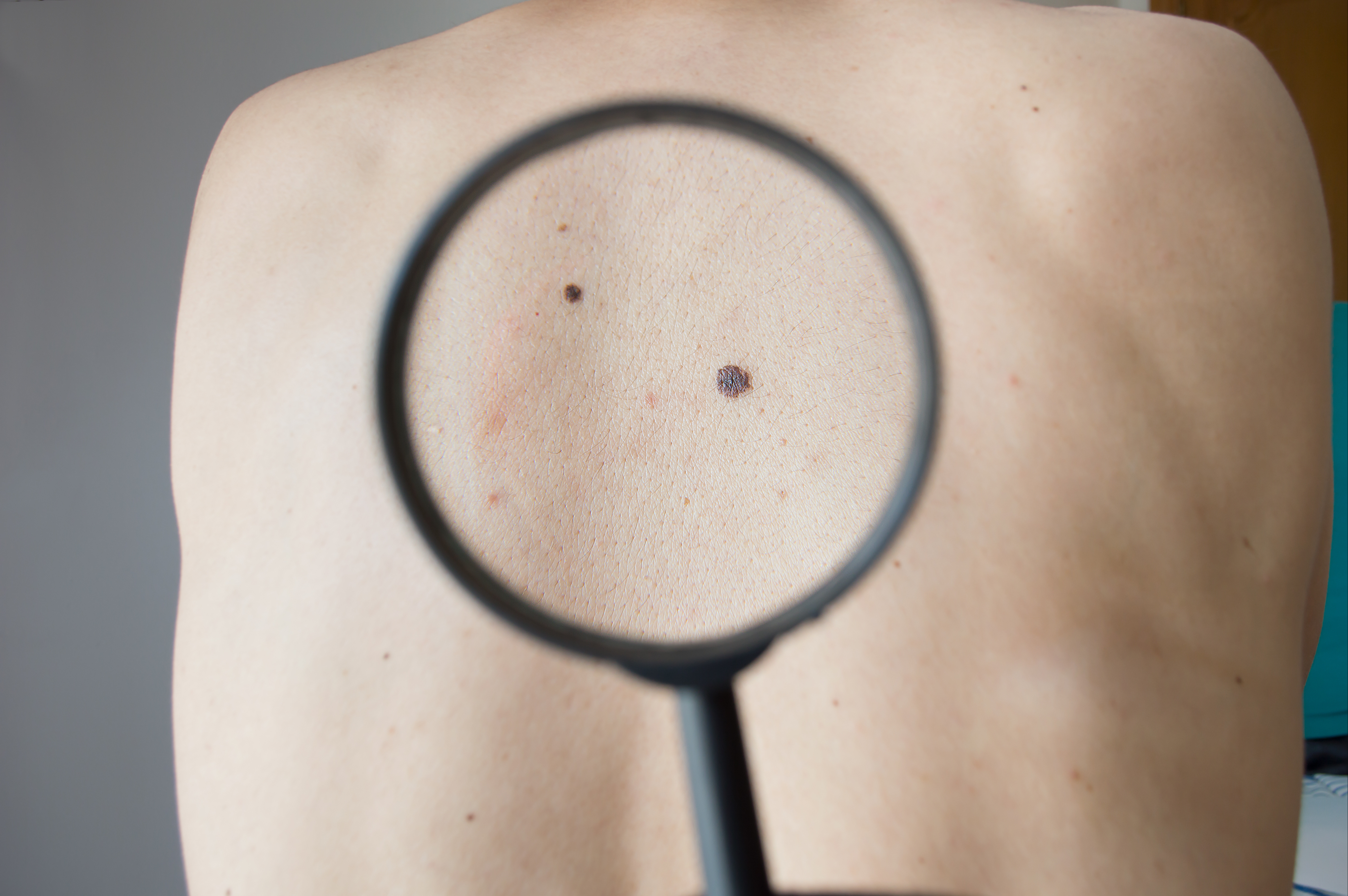 Stop Skin Cancer: Before It's More Than Skin Deep