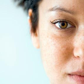 The Top Skin Cancer Myths
