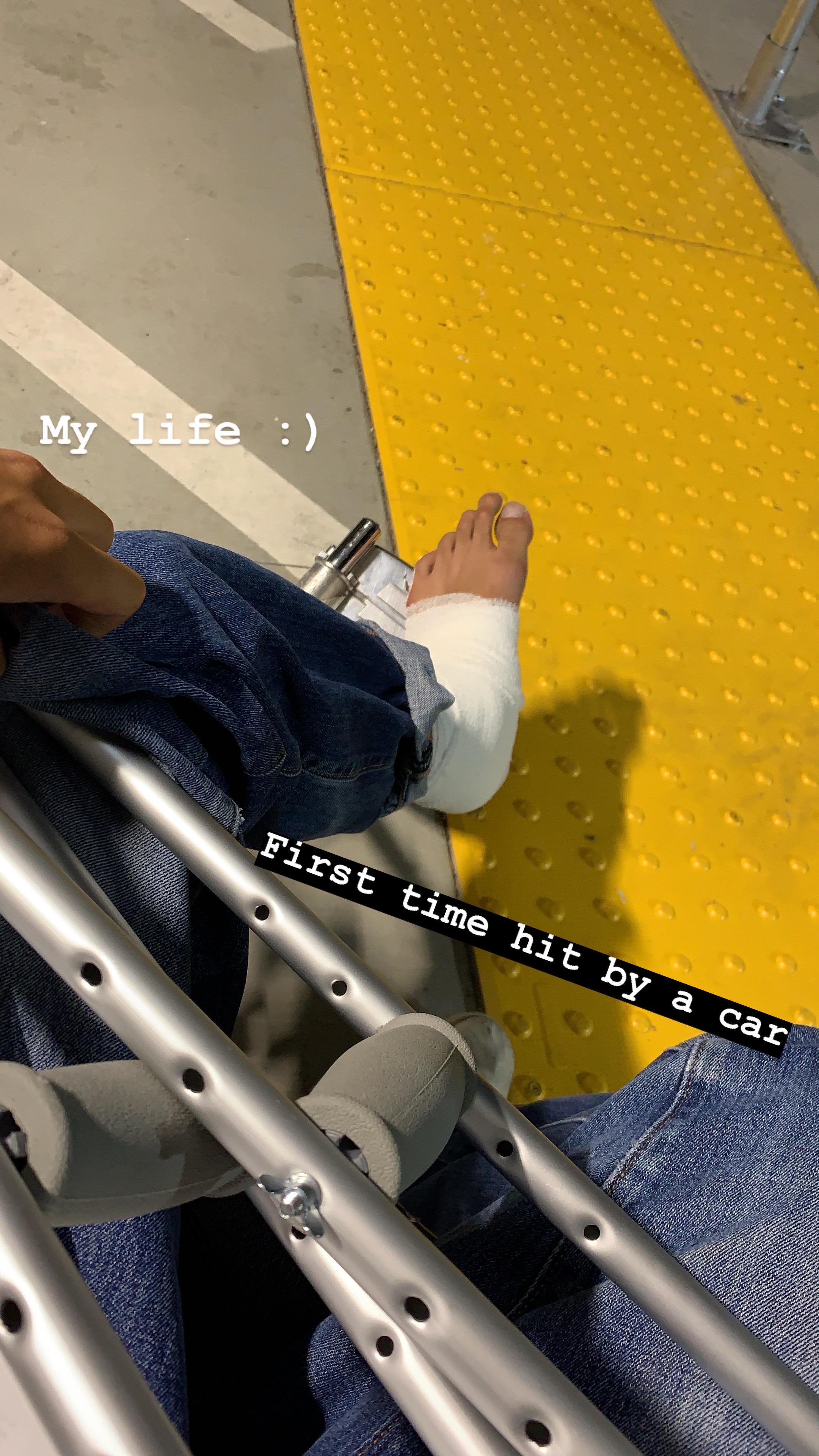 アメリカで車に轢かれた件