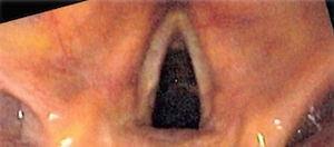 laryngoscopy