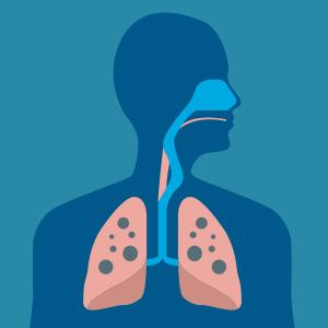 Tuberculosis Susceptibility