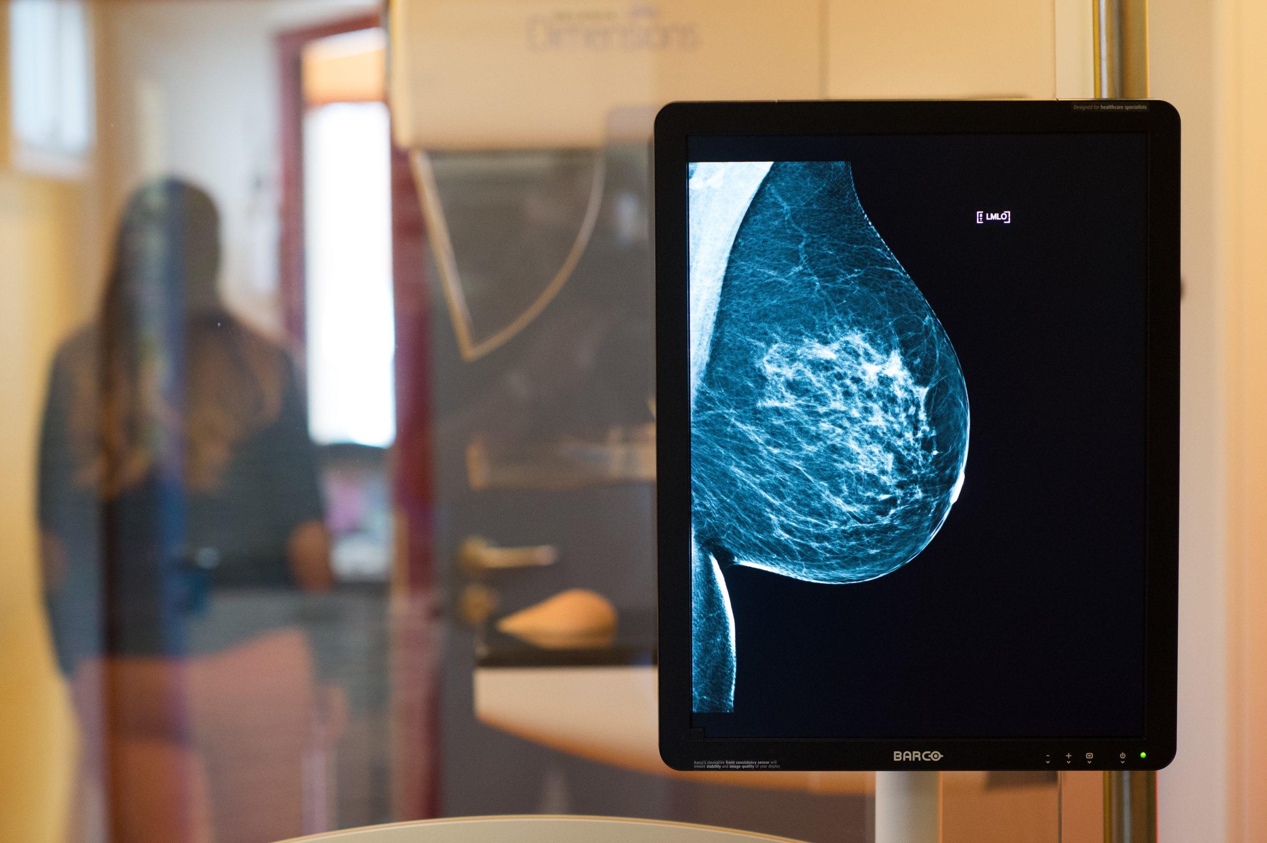Cómo detectar a tiempo un cáncer de mama