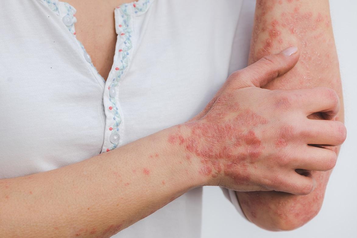¿Cuáles son los efectos de las enfermedades reumáticas?