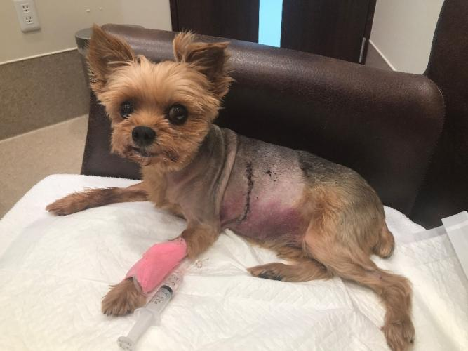 As a result of the six-hour mitral valve repair surgery, Oliver received multiple stitches over his incisions and bruising on his abdomen. (Laura Becker photo)
