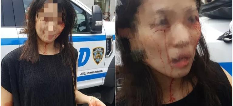 中国女生遭三名黑人女子暴打满脸是血,纽约警察竟然不作为?