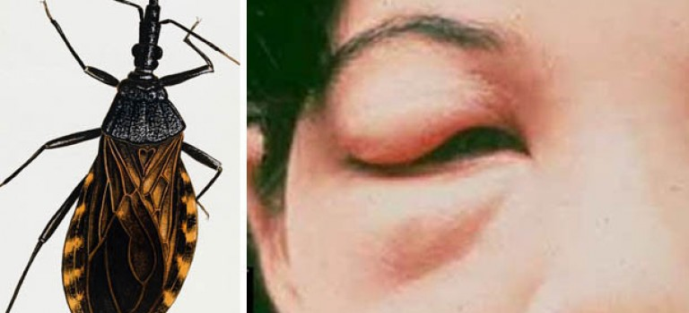 吸血怪虫蔓延美国27个州,一旦被咬或将造成心脏疾病!