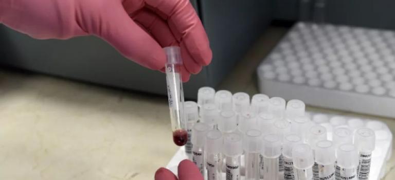 可怕!医院卫生器材消毒不当,3778名患者恐感染艾滋或肝炎!