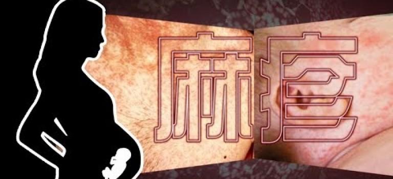 東張西望 | 香港首宗孕婦感染麻疹 事態有幾嚴重?