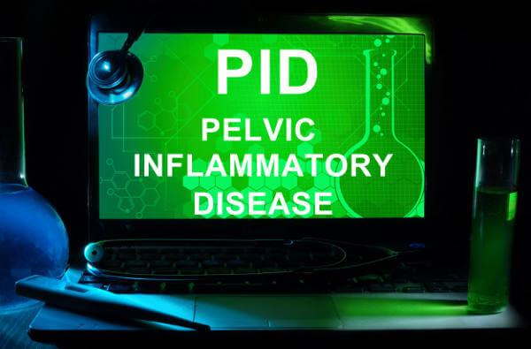 PID Pelvic Inflammatory Disease