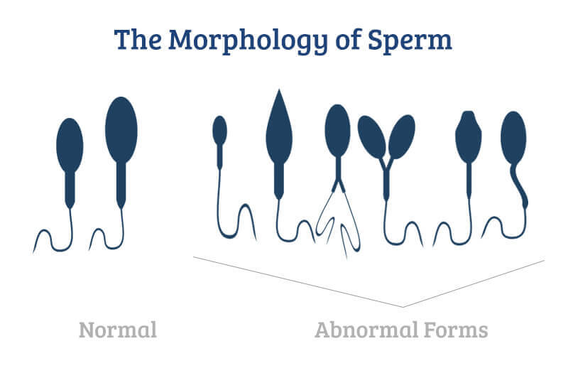Morphology of sperm