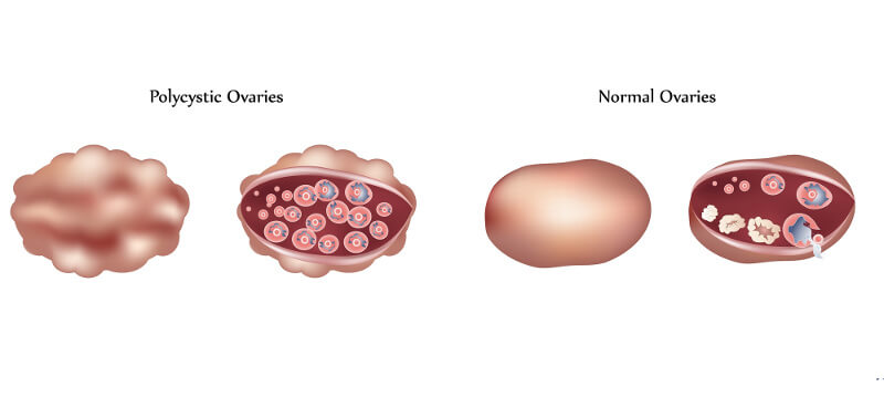 PCOS ovary and normal ovary