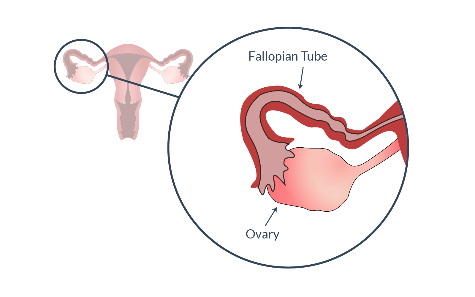 Fallopian tube and ovary