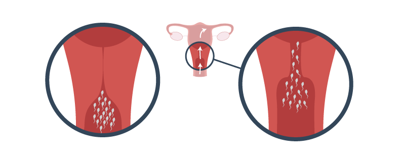 The cervix. Gateway to the uterus, acting as both a barrier and transport for sperm
