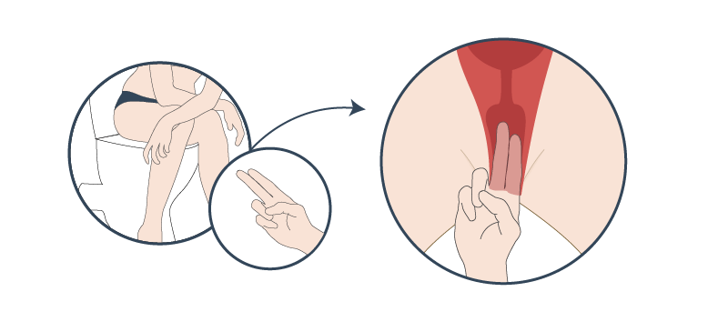 Locate your cervix by sitting on an open toilet and inserting your index and middle fingers into your vagina to touch your cervix