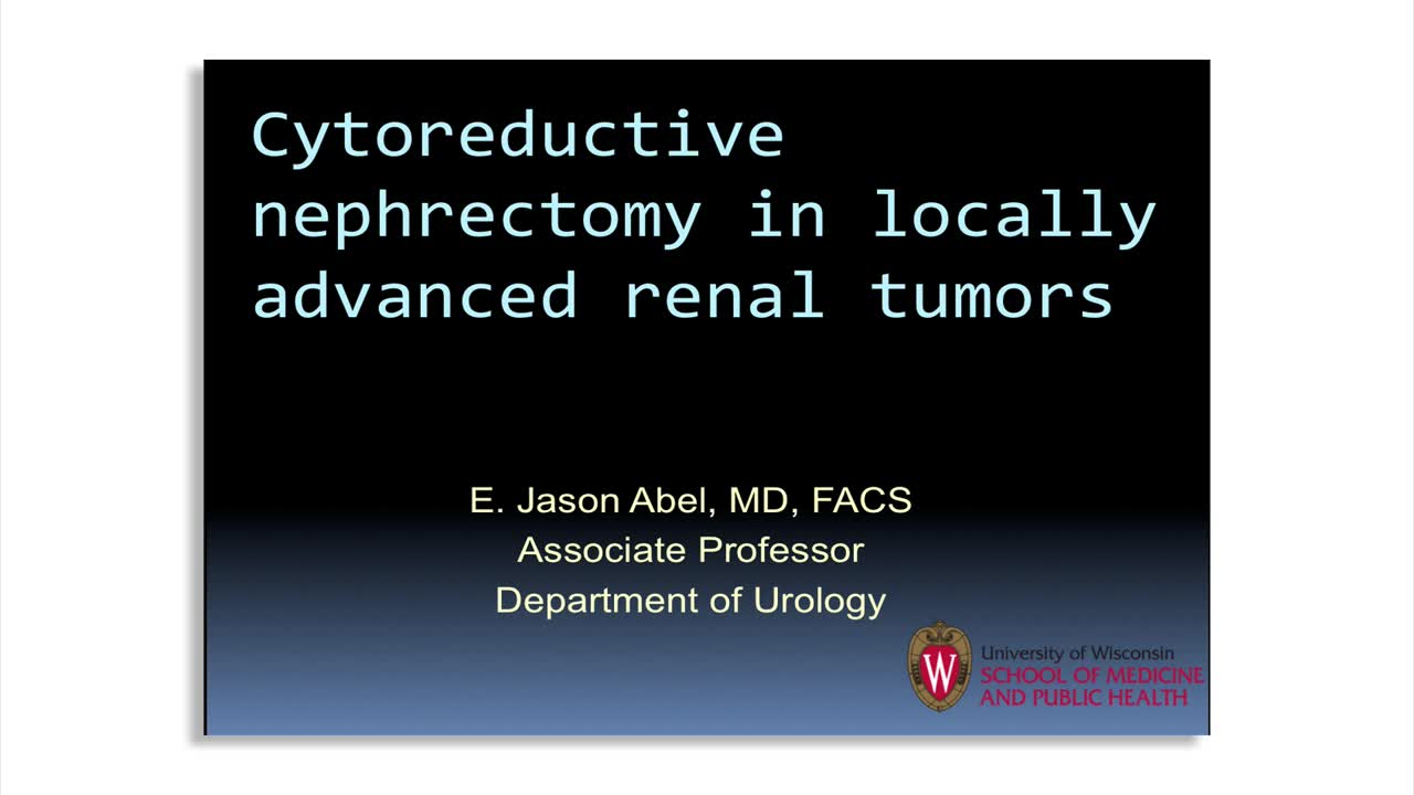 Cytoreductive nephrectomy in locally advanced renal tumors