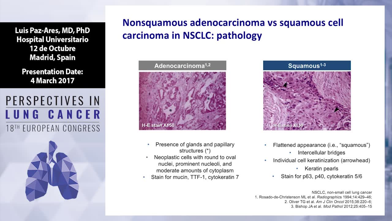 Squamous cell carcinoma of the lung: Treatment options in first- and second line