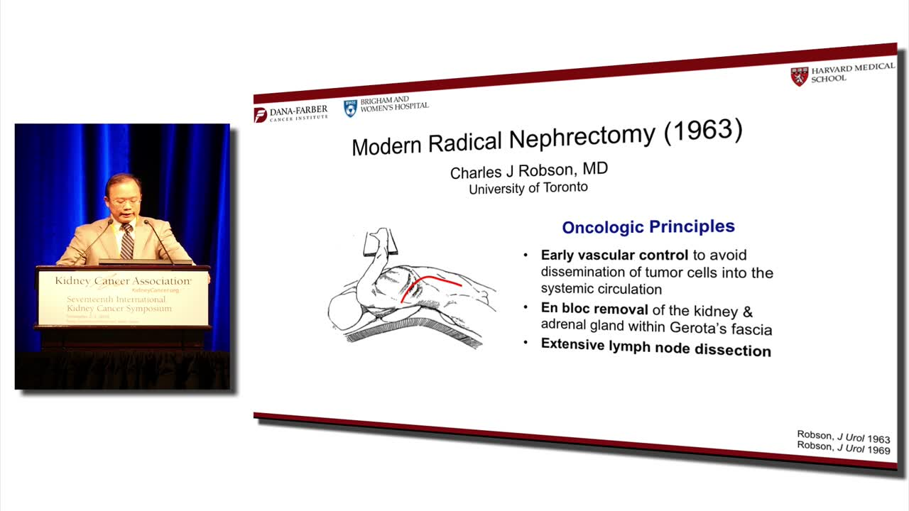 Laparoscopic Vs Robotic Radical Nephrectomy: What are the Costs and Benefits?