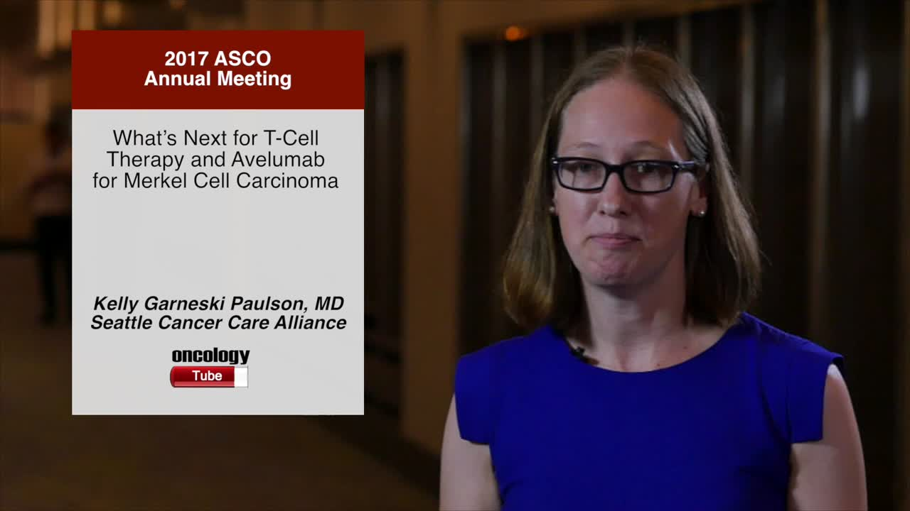 What's Next for T-Cell Therapy and Avelumab for Merkel Cell Carcinoma