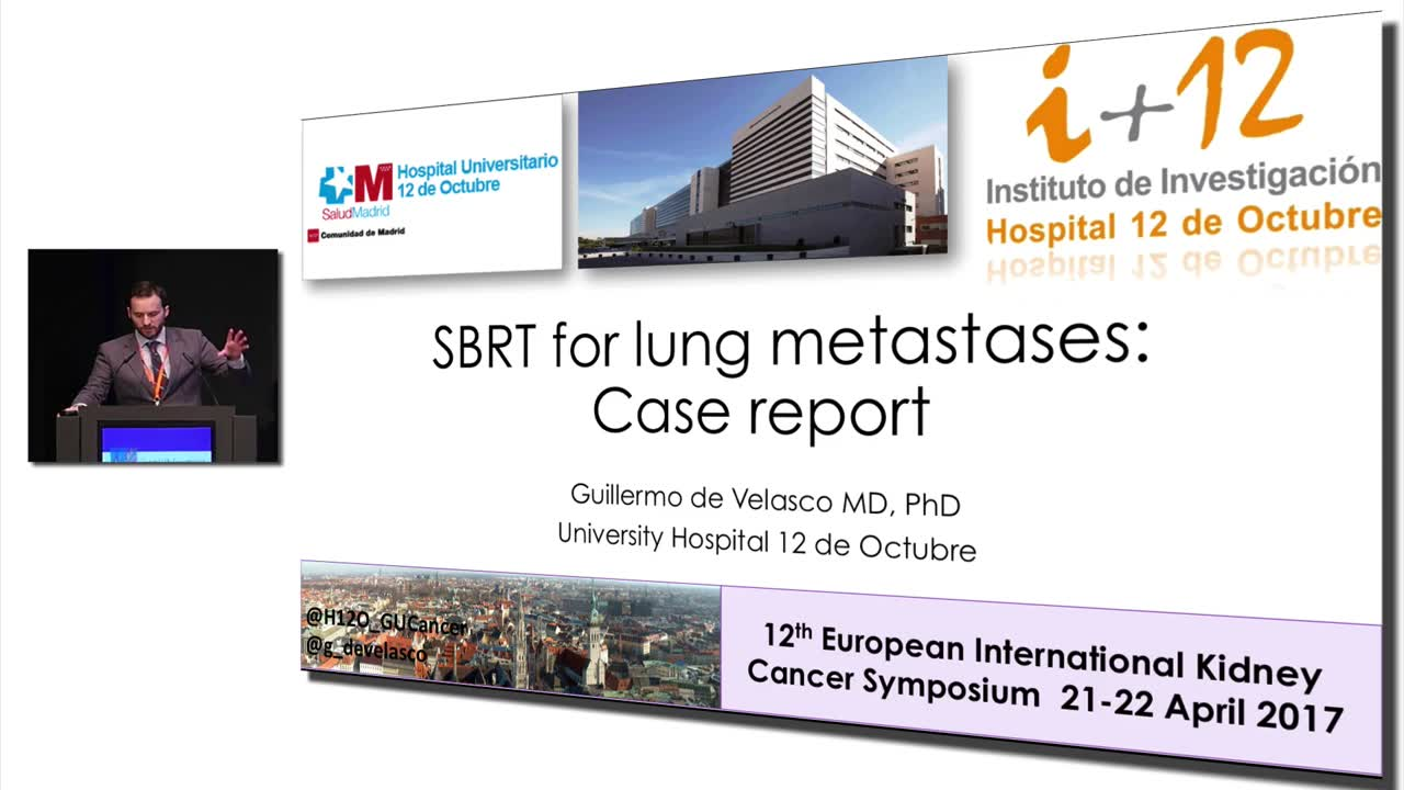 SBRT for lung metastases:  Case report #KidneyCancer