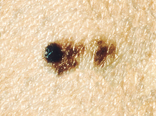 A close-up photo of light colored skin with a small dark, irregular and spreading patch of skin. Part of the dark patch looks like a slightly elevated mole.