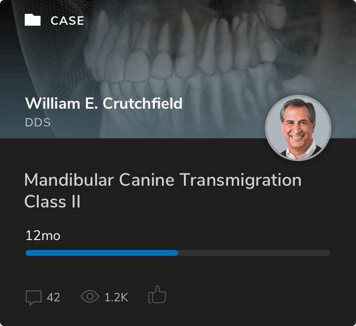 CaseCard™ of W.E. Crutchfield, DDS, with a digital image showing teeth and bite at 12 months for a Class II Mandibular Canine Transmigration