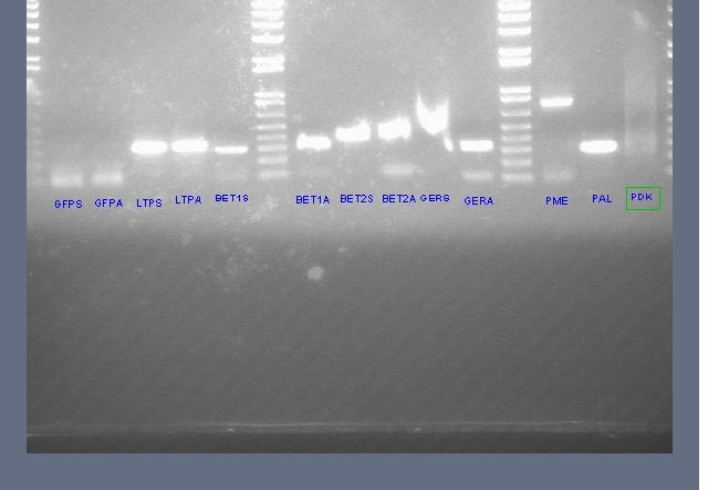File:Genomic dna pcr 2.jpg
