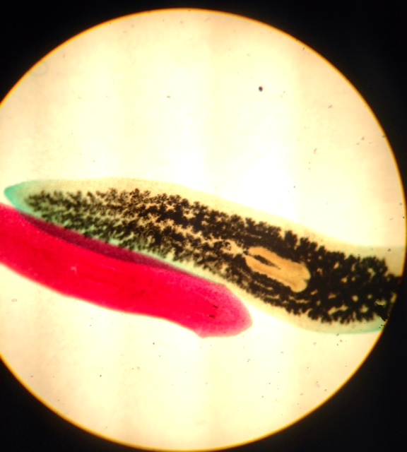 Image:Planaria_whole_mount.JPG