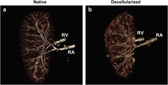 File:Decellularized Kidney Vasculature.jpg