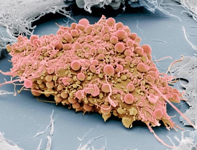 File:1.13434 C0150283-Mesenchymal stem cell, SEM-SPL.jpg