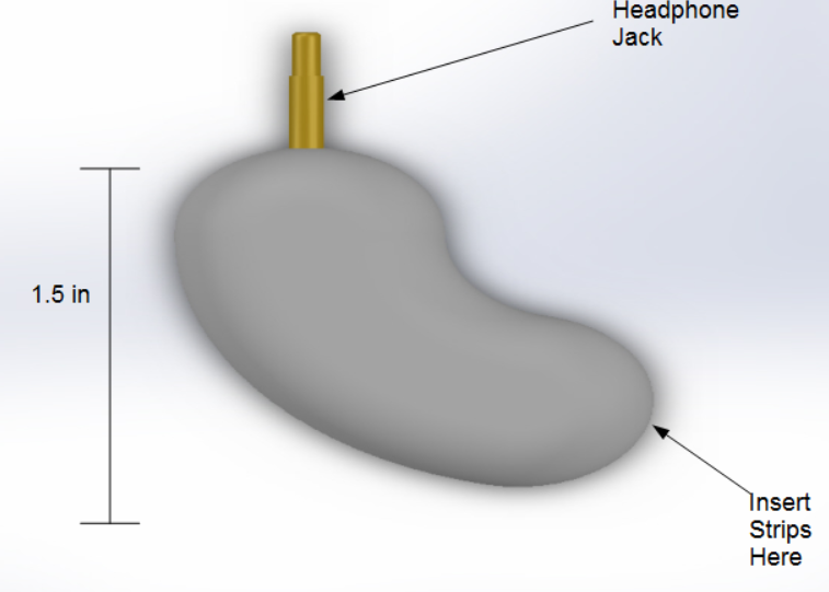 File:Kidney labeled new.PNG