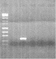 File:Lab 2 Part 1 agarose gel.jpg