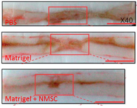 File:Tumor Xenograft Spine.png