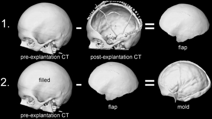 The doctor uses a CT scan of the patient's skull before surgery (often taken upon onset of cranial trauma), then after the flap of skull has been removed. Through digital subtraction of the two images, the flap's shape can be constructed as a mold in a 3D printer.  [7]