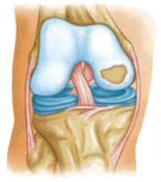 Figure 1: Articular cartilage (light blue) of the knee sits above the meniscus (dark blue). The cartilage is shown with an FCL (on the right) [2].