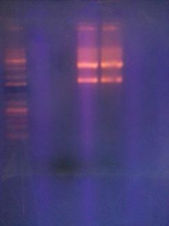 File:Electrophoresis2.jpg