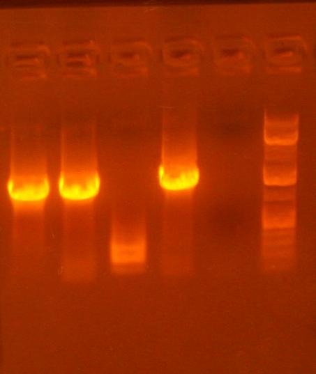 File:Analytical gel pic 6-24.jpg