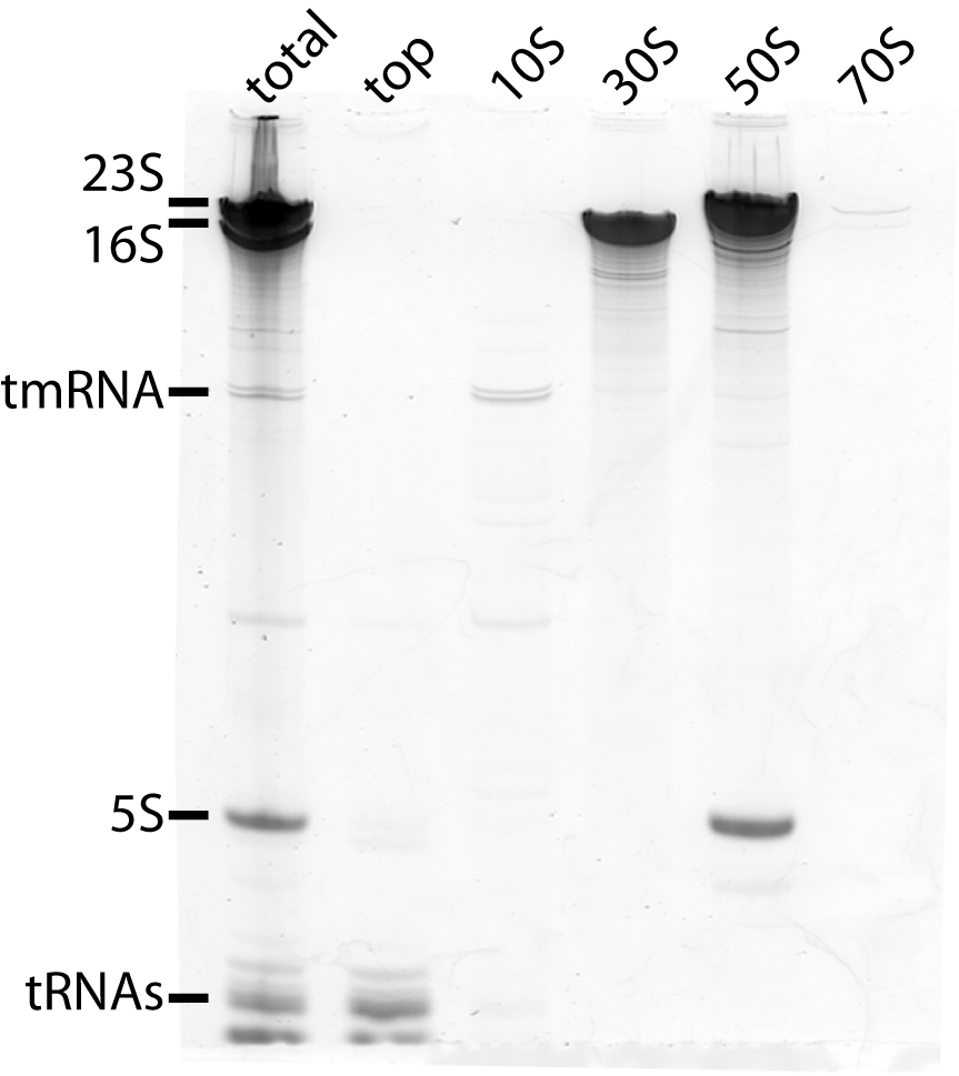SDM RNA3.jpg
