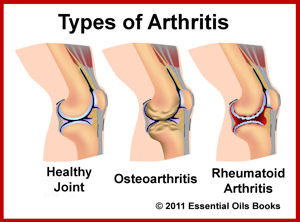 Effects of different types arthritis on the knees [11]