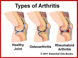File:Arthritis.jpg