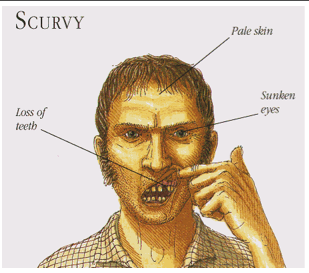File:BME494 Group7 Scurvy.png