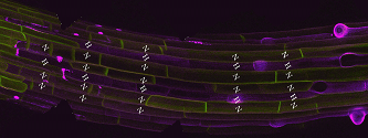 File:Root hair + GFP.PNG