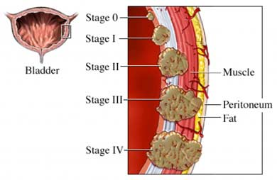 Different stages of transitional cell (urothelial) carcinoma, which is the most common kind of bladder cancer. [17]