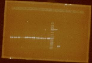 File:PCR amplif 11 promoters.JPG