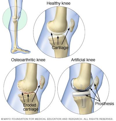 File:Osteoarthritis and knee degradation.ashx