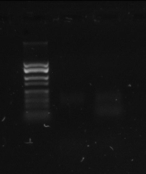 File:PCRproduct08272015 2.JPG