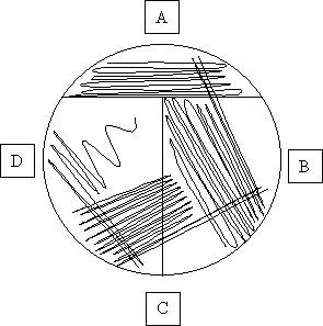 File:Streaking diagram.jpg